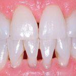 Созданы уколы в десны для получения моложавой улыбки
