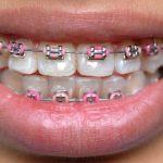 Стоматологи заявили, что брекеты нужно носить всю жизнь
