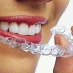 Особенности выравнивания зубов у взрослых людей