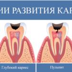 Пульпит: симптомы заболевания и причины его появления